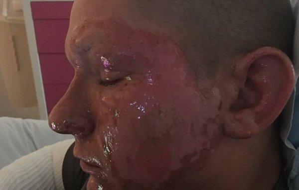 В Вирджинии подросток получил вздутые ожоги третьей степени из-за борщевика