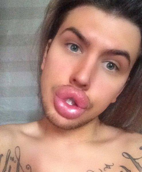 У поклонника Кайли Дженнер могут взорваться губы из-за многочисленных инъекций