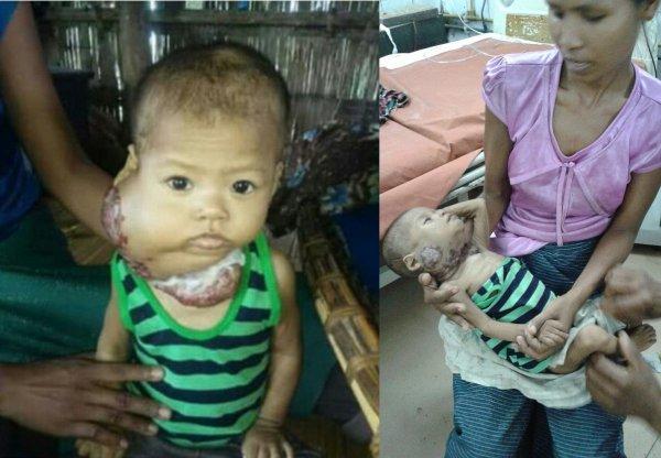 Гонка со времненем: В Индии пытаются спасти девочку с ужасным комом на шее