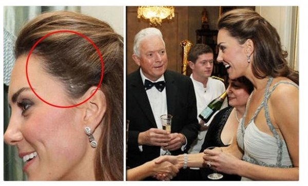 Тайна ужасного шрама: Кейт Миддлтон перенесла операцию на голове