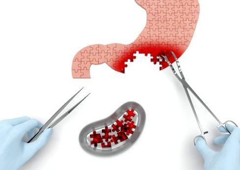 Методы лечения рака желудка и почек в Германии