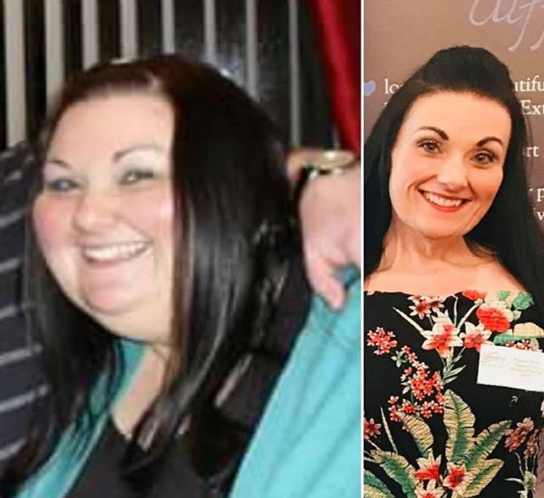 Потерявшая 108 килограммов женщина поделилась секретами похудения