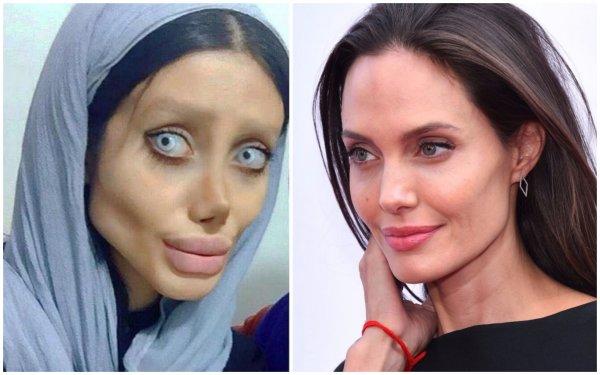 «Зомби-копия» Анджелины Джоли сделала новую операцию ради схожести с кумиром